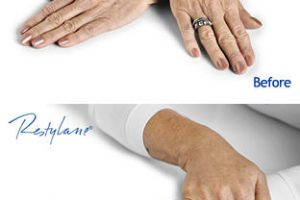 Hand Before After Copyright Q-Med