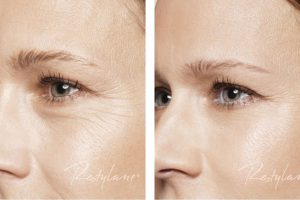 Restylane - Skinboosters 2