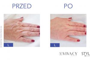 przed i po dłonie